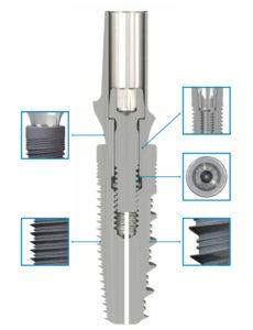 Prodotti dentali innovativi: scopri i vantaggi di Profile 1